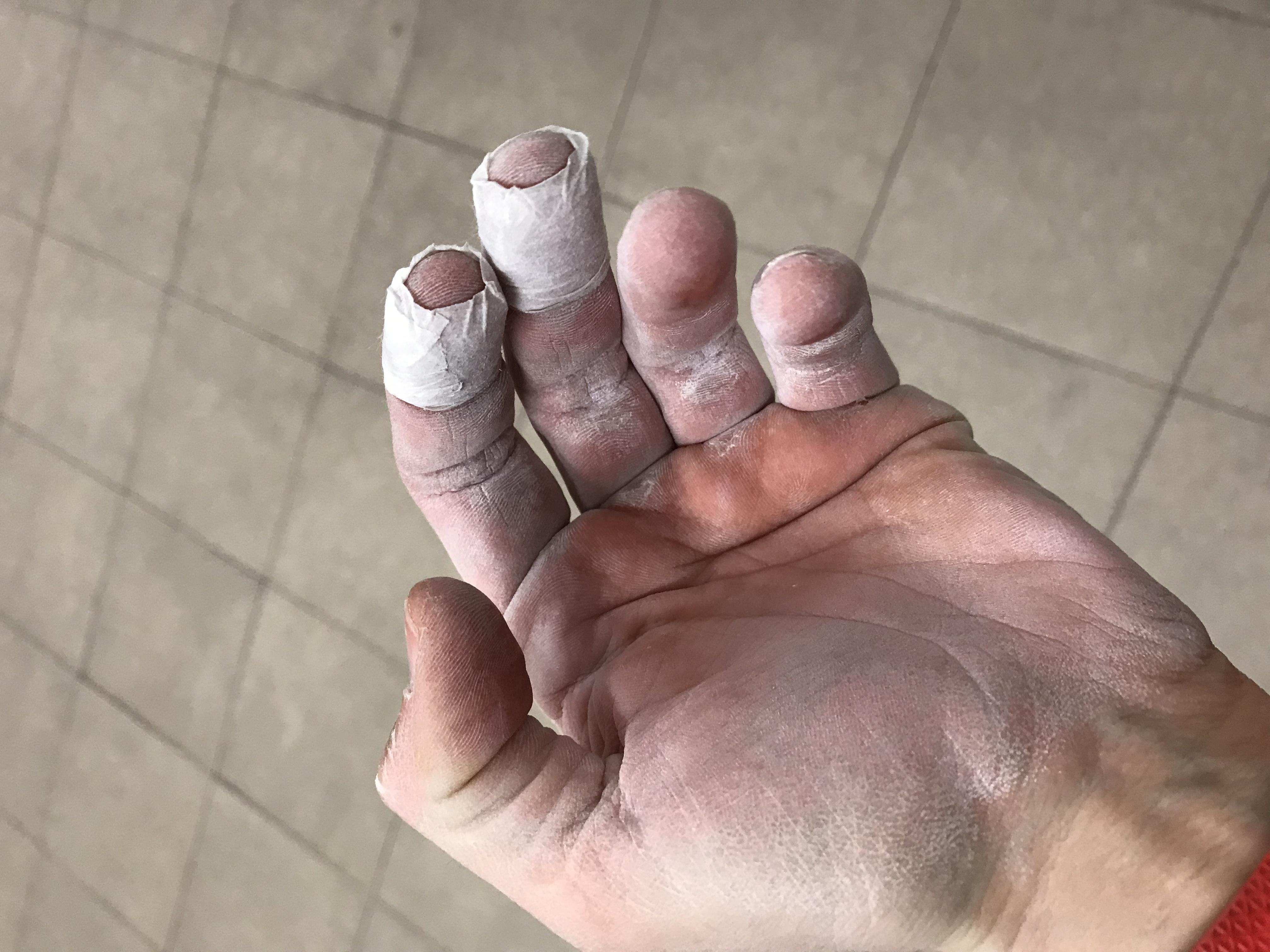 manos de escalador | escaladayferratas.com